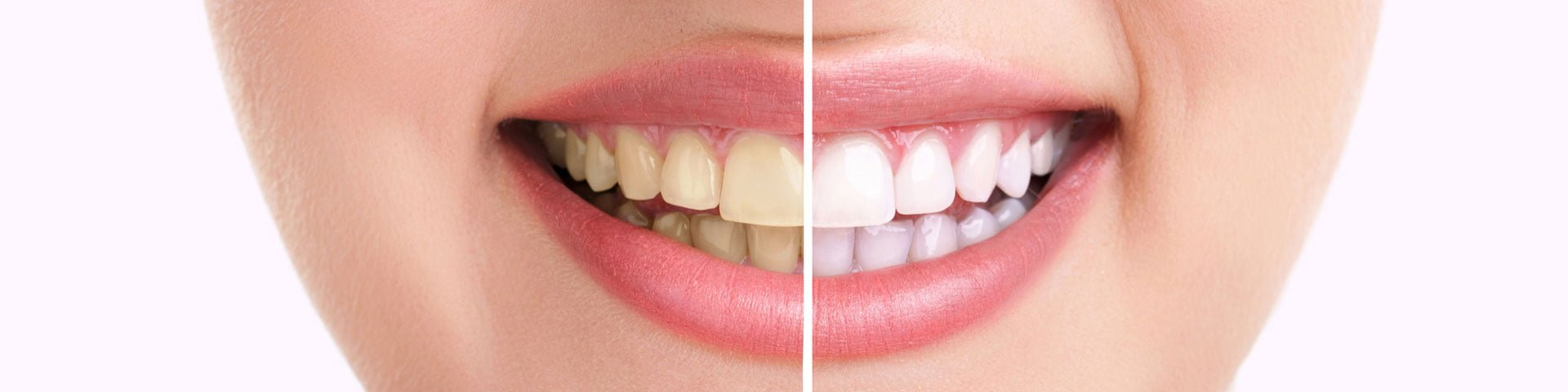 Answers to Frequently Asked Questions at Napa Family Dental